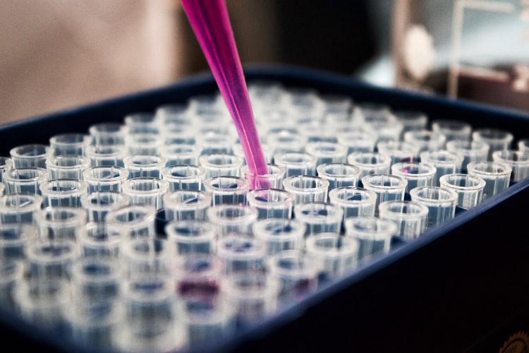 """Imagem de diversas """"Pipetas"""", instrumento utilizado em laboratórios para volumes líquidos."""